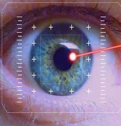 Laser Surgery in Sydney
