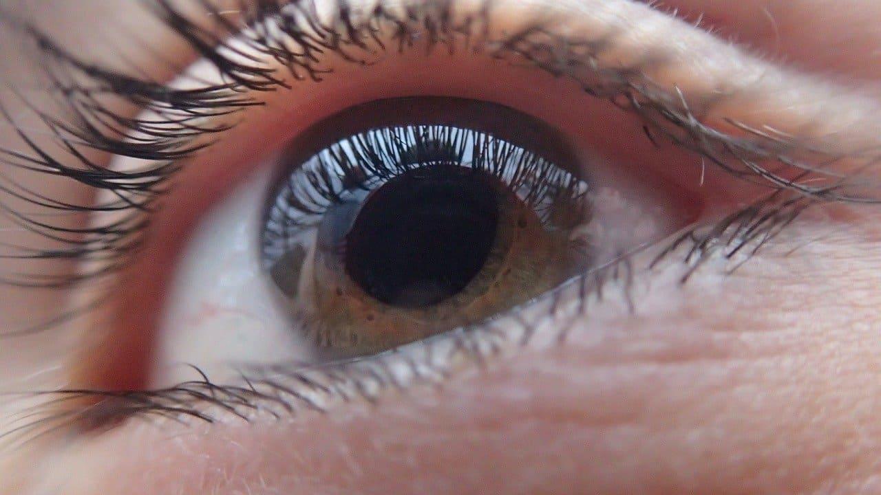 Glaucoma symptoms and treatment