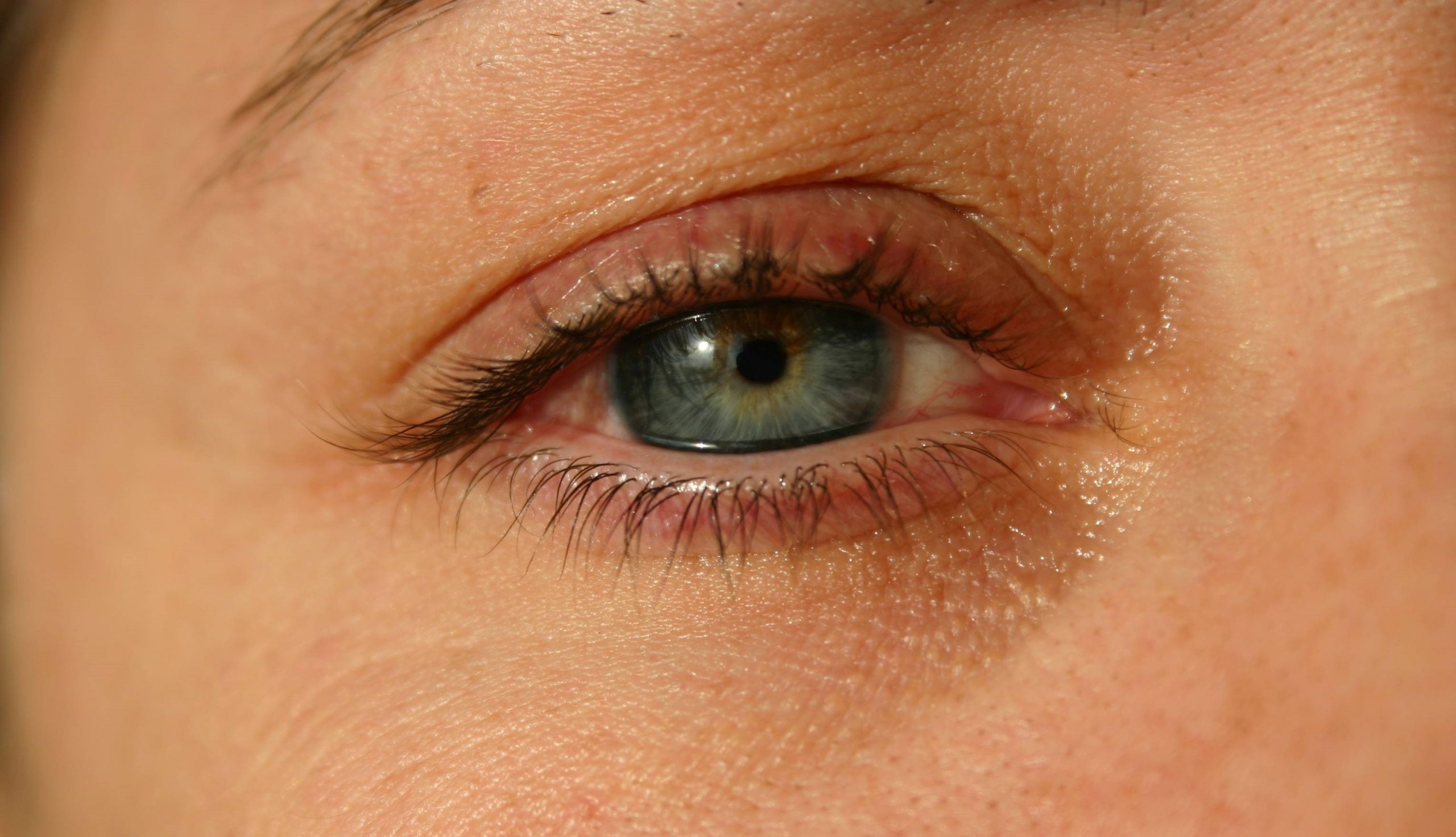 Conjunctivitis symptoms